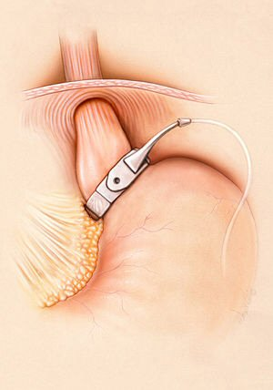 A gastric Band fitted around the upper neck of the stomach